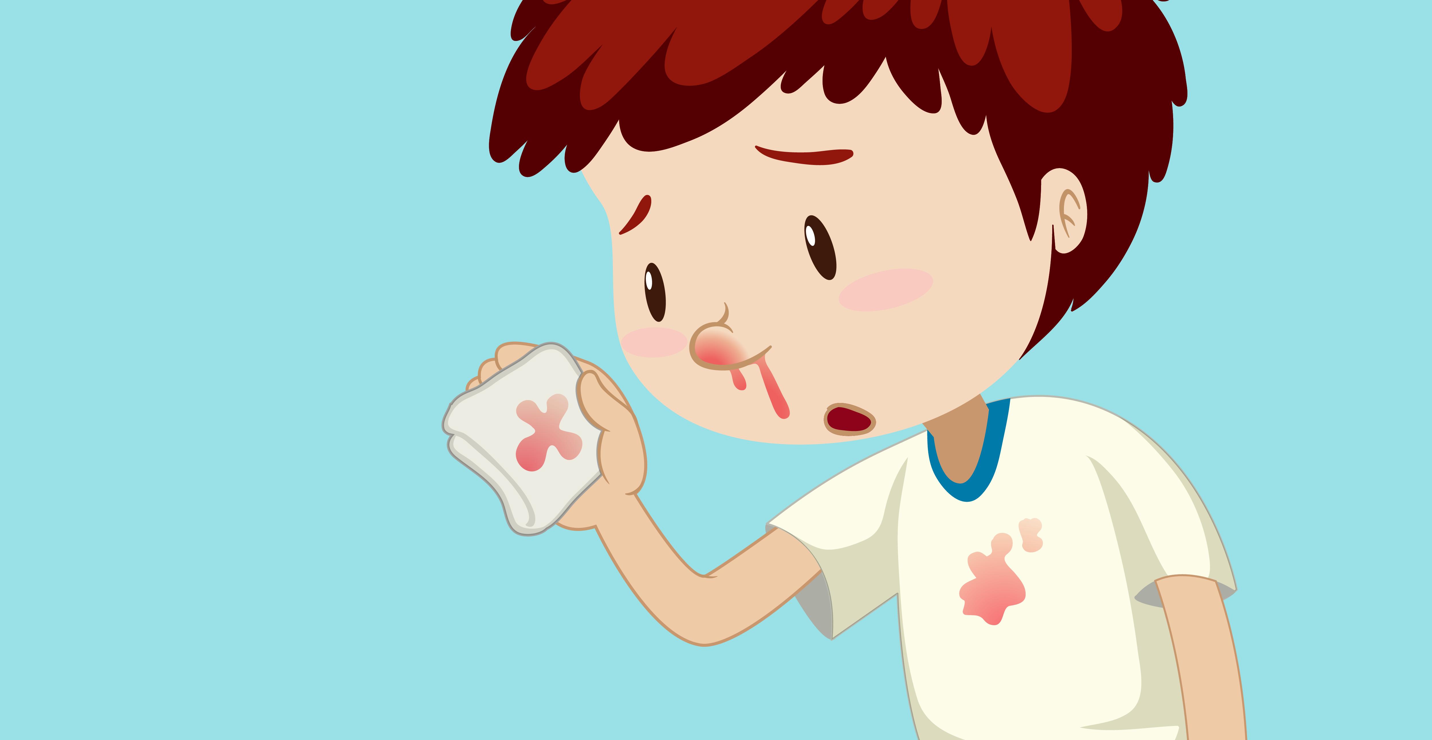 Sangramentos Nasais O Que Fazer